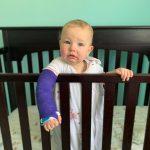 Buckle fracture